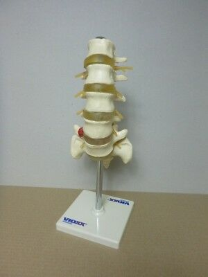 Anatomical model of spinal column on display stand.
