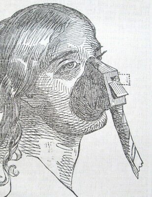 1848 Antique Medical ; Important Anesthesia Inhaler Paper By Dr  Snow