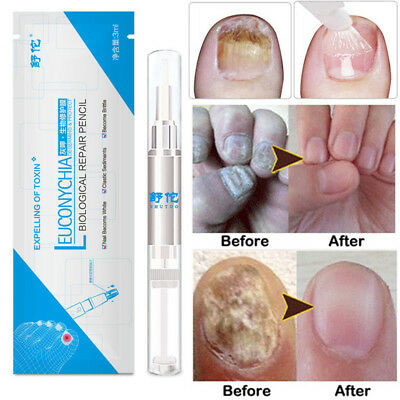 3ML Anti Fungal Nail Treatment Finger Toe Care Nail Fungus Treatment Liquid Pen