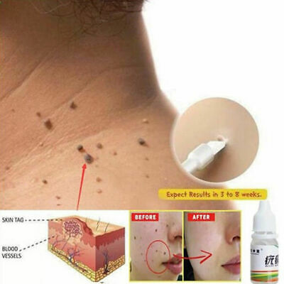 10ml Effective Mole Remover Skin Tag Remover Wart Remover Works 100% All Natural