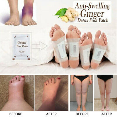 10Pcs Anti-Swelling Ginger Foot Detox Patch Foot Patches Pads Improve Sleep