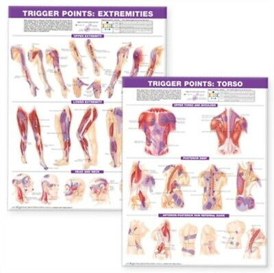 Trigger Point Chart Set: Torso and Extremities (Wall Chart)