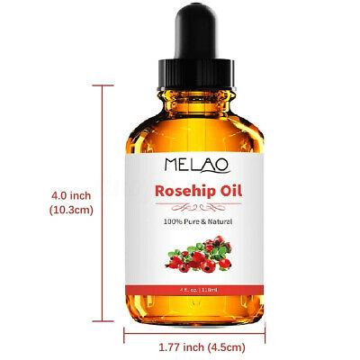 Organic Rosehip Seed Oil | 4oz | Imported From Chile | 100% Pure | Cold