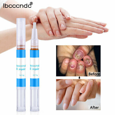 Nail Fungal Treatment Pen Anti Fungus Infection Biological Repairs Solution Care
