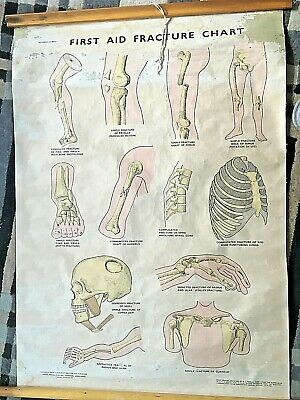 1942 First Aid Fracture Chart from original drawings. Published by Adam, Rouilly