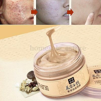 Skin Care Herb Acne Scar Blackhead Mite Treatment Whitening Face Mask Cream