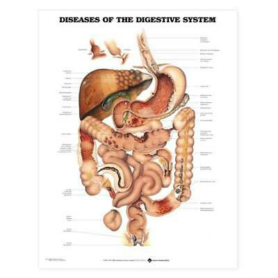 Digestive System Diseases Anatomical Chart 20'x26' Laminate and Styrene Chart