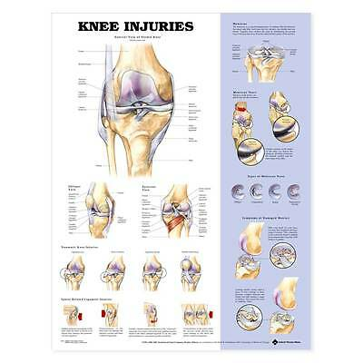 The Knee Injuries Anatomical Charts 20x26 Showing Common Injuries Of The Knee