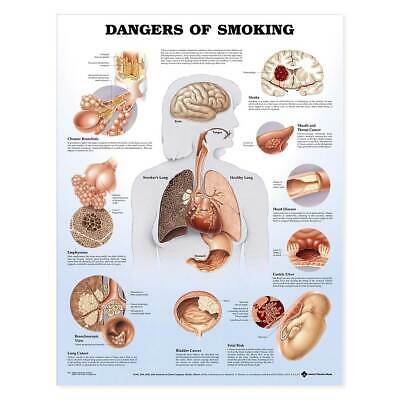 "Dangers of Smoking Anatomical Chart Laminated Deluxe Professional Grade 20""x26"""