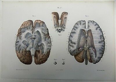 1853 Hirschfeld ANATOMY BRAIN handcolor MASTERPIECE MEDICAL ILLUSTRATION