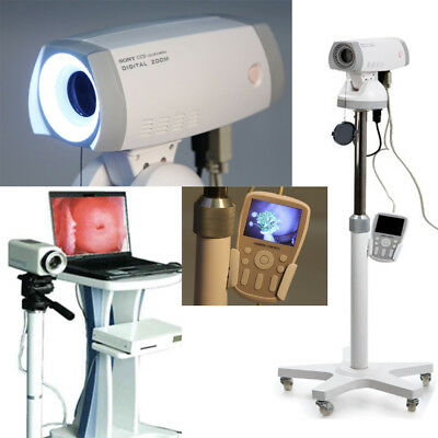 Digital 830,000 pixels Electronic Video Colposcope SONY Camera Tripod Medical CE