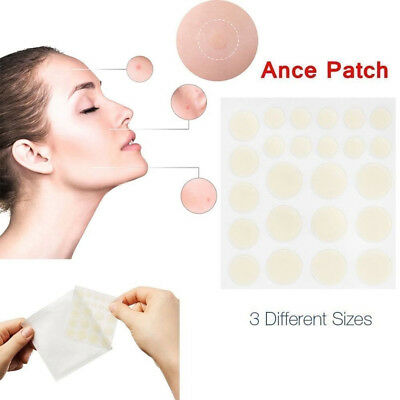 24H ACNE SKIN TAGS REMOVER (36/72 PCS) Pimple Master Patch Pimple Treatment HOT
