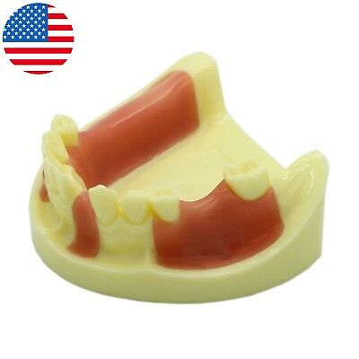 Dental Implant Practice Typodont Lower jaw Teeth Model Removable Gingiva 2004#