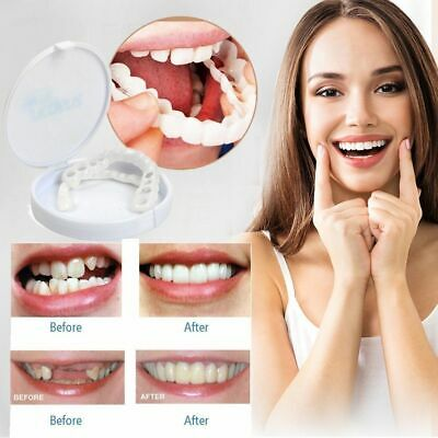 COSMETIC TOOTH COVER Natural False Teeth Fake Tooth Upper
