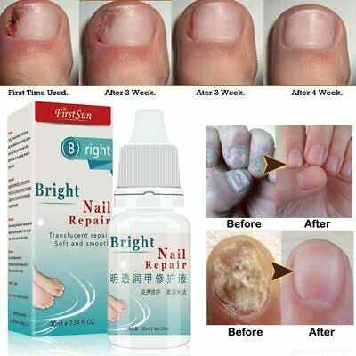 10ml Nail Fungus Treatment Cream Onychomycosis Paronychia Anti Fungal Infection