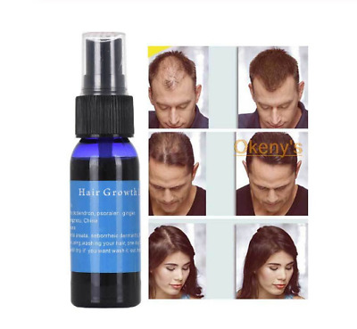 Okenyy's Kirkland 5% Hair Regrowth Solution Extra Strength Men 6 Month Supply