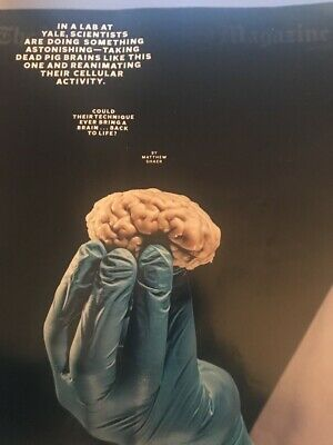 THE NEW YORK TIMES MAGAZINE - July 7, 2019 - Can The Brain Come Back to Life?