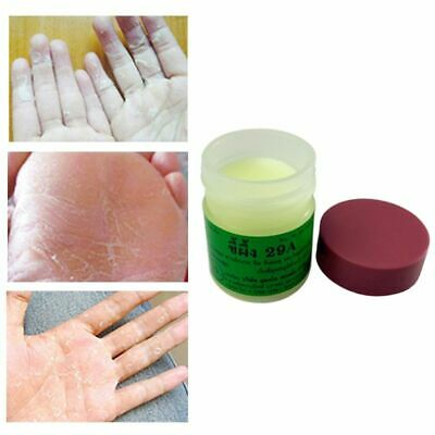Antimicrobial Foot Cream Anti Fungal Natural Ointment for Relieve Itching Leg