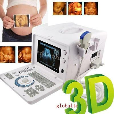 10 Inch Portable Digital Ultrasound Scanner w/ 3.5mhz Convex Probe for Pregnancy