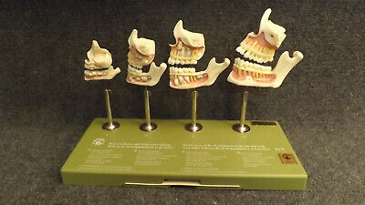 Kilgore 4 stages of Jaw and Tooth Development SMOSO Model