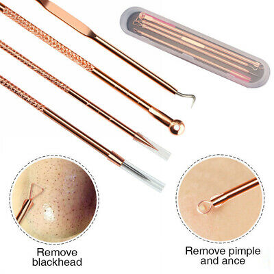 Blackhead Whitehead Comedone Spot Pimple Blemish Extractor Remover Tool Set Kit