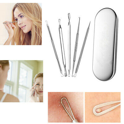 Pimple Remover Tool Kit Blackhead Whitehead Spot Comedone Popper Extractor UK