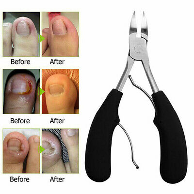 Toe Nail Clippers for Thick Nails Ingrown Toenail Dead Skin Correction Tool US